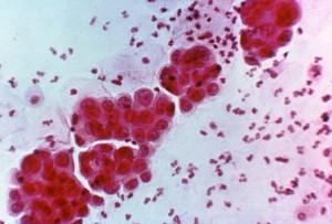 endometriumca